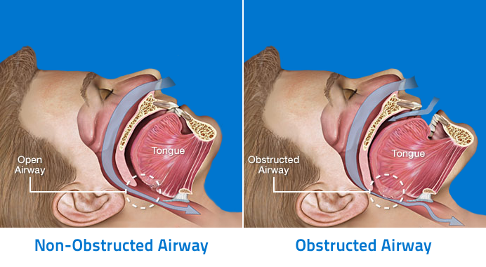 Anatomy-of-Obstructive-Sleep-Apnea